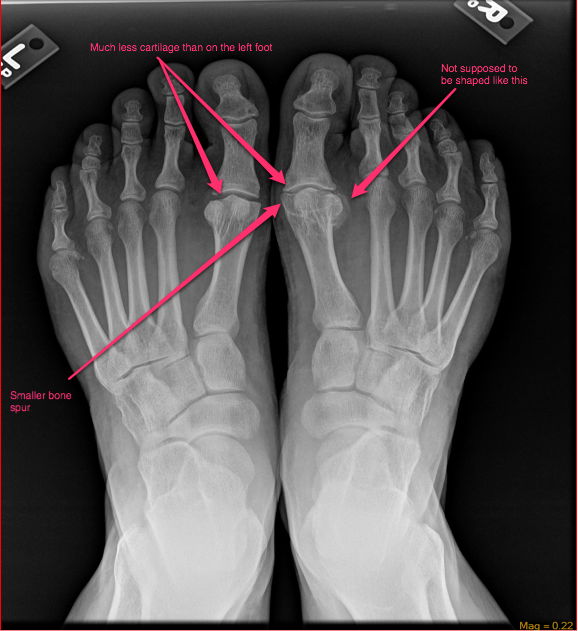 Note the enlarged knuckle on the right big toe