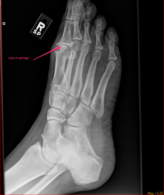 Oblique view of right foot