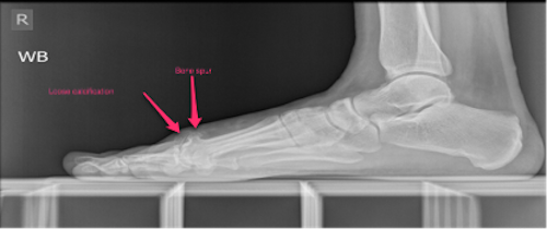 Side view showing bone spur and loose calcification